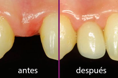 Antes y después en implante dental