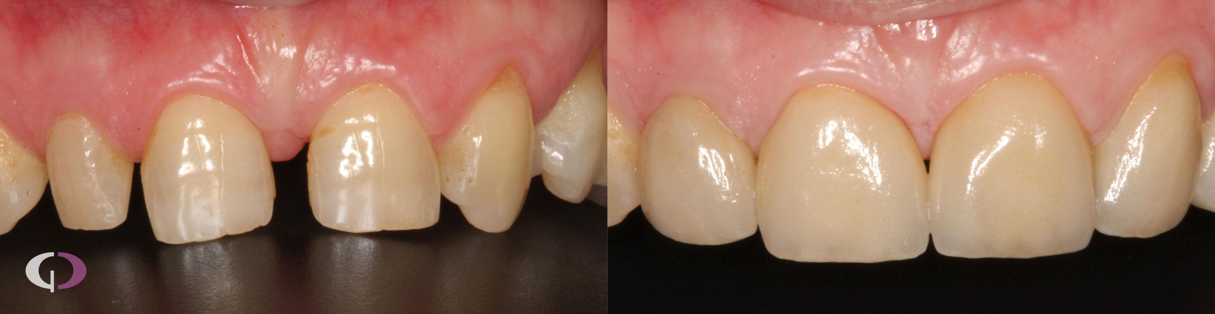 Antes y después tratamiento coronas de porcelana