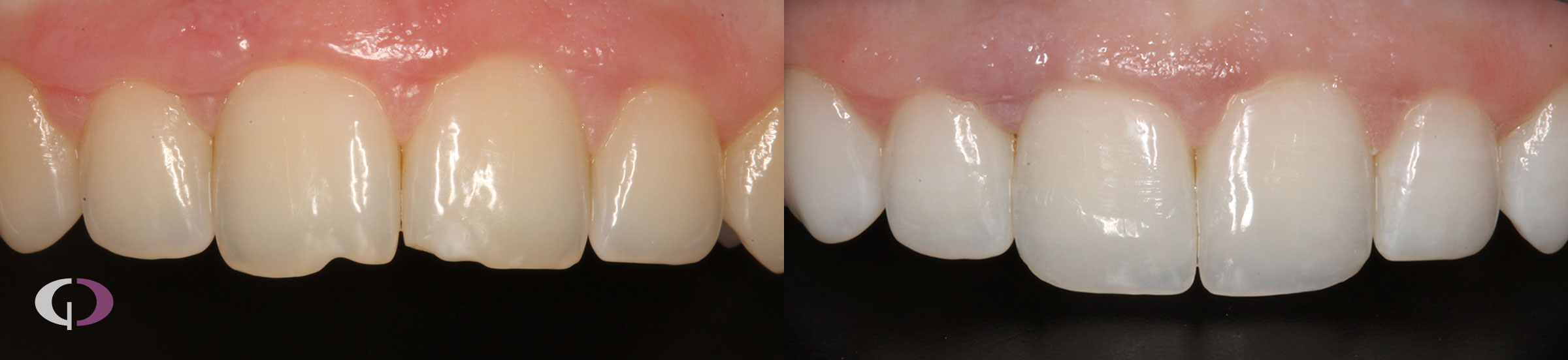 Reconstrucción dental en Sevilla