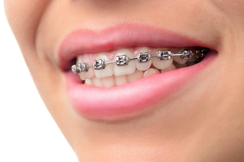 Ortodoncia en sevilla