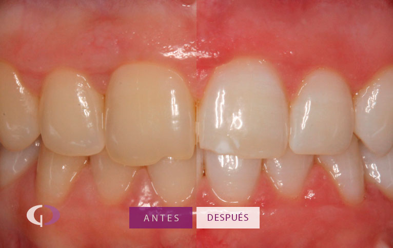 Antes y despues Blanqueamiento dental en sevilla