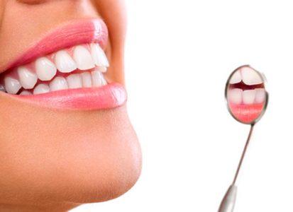 endodoncia-sevilla