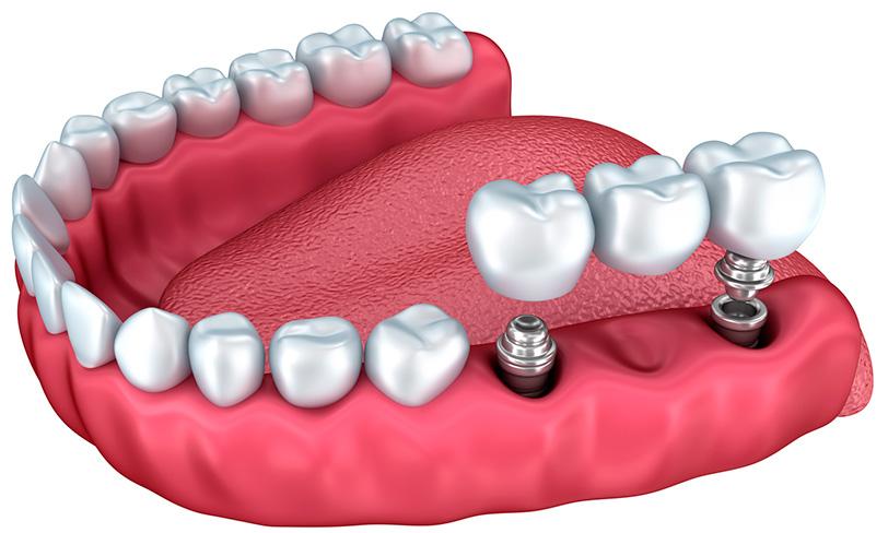 implantes-dentales-en-sevilla