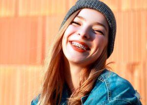 ortodoncia-adolescentes-sevilla