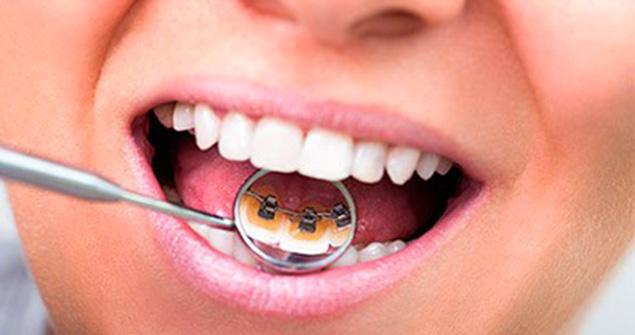 ortodoncia_lingual-sevilla