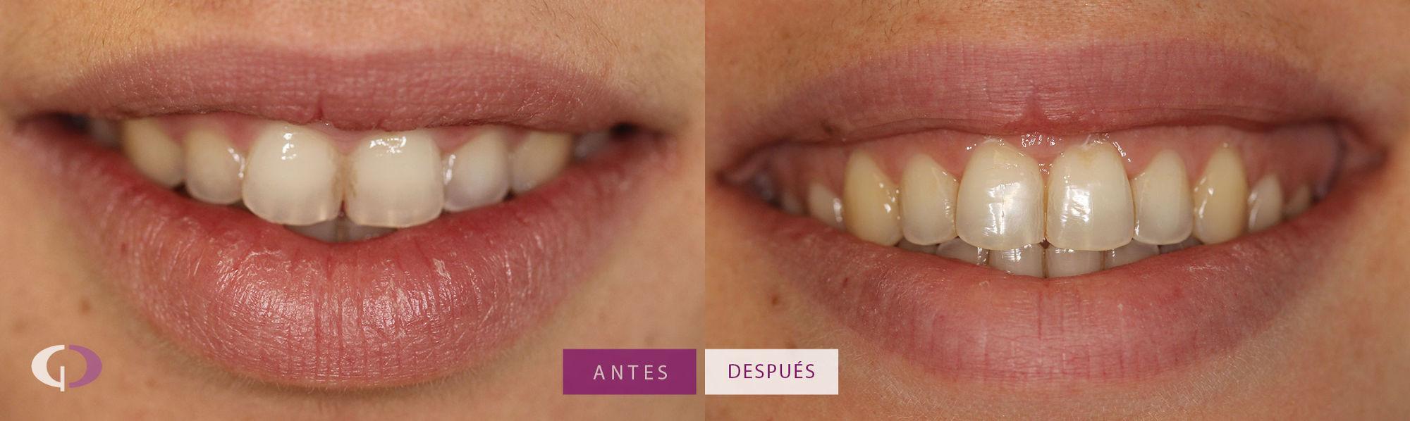 Alargamiento de corona - Clínica Odontología Especializada