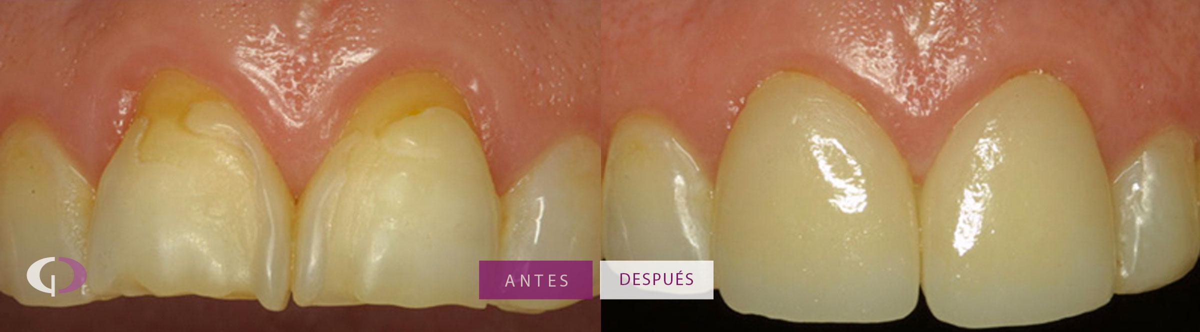 Antes y despues carillas dentales