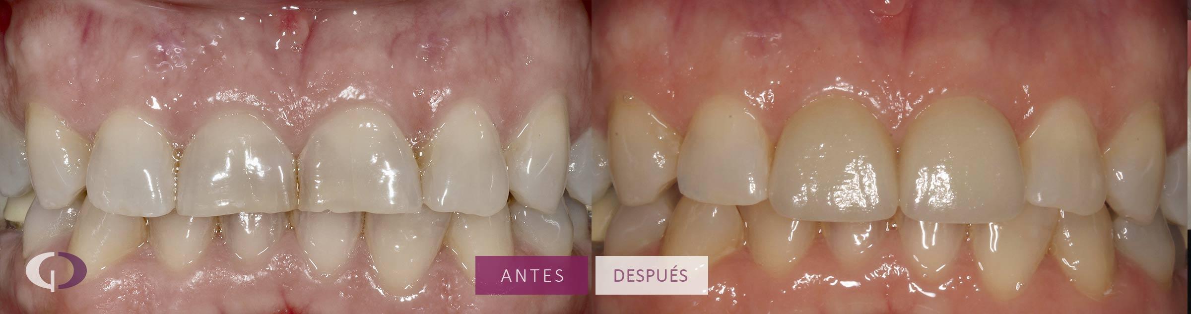 carillas-dentales-sevilla