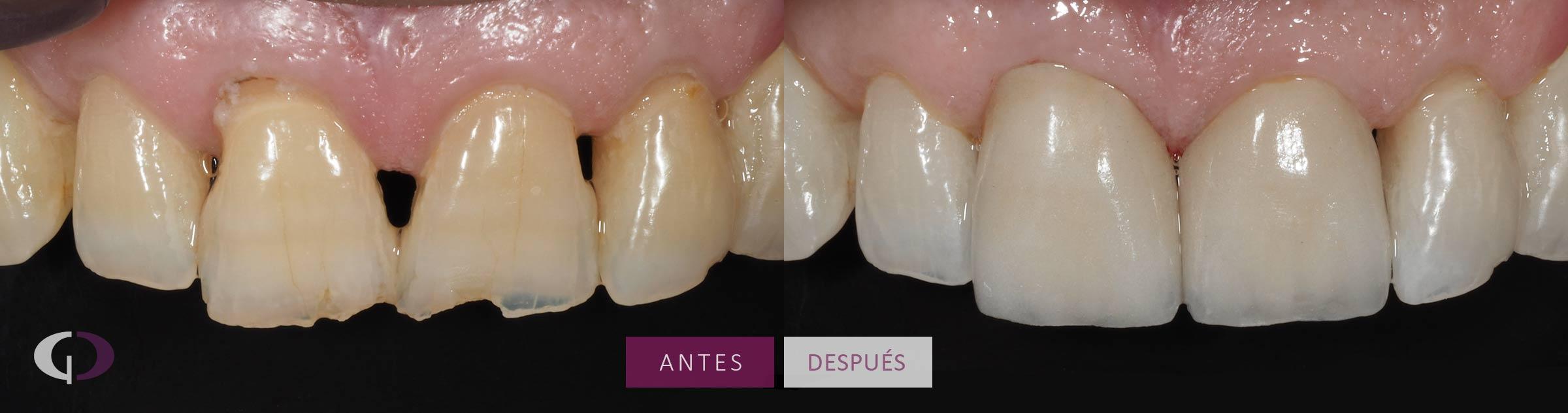 Caso Clínico carillas dentales en Sevilla