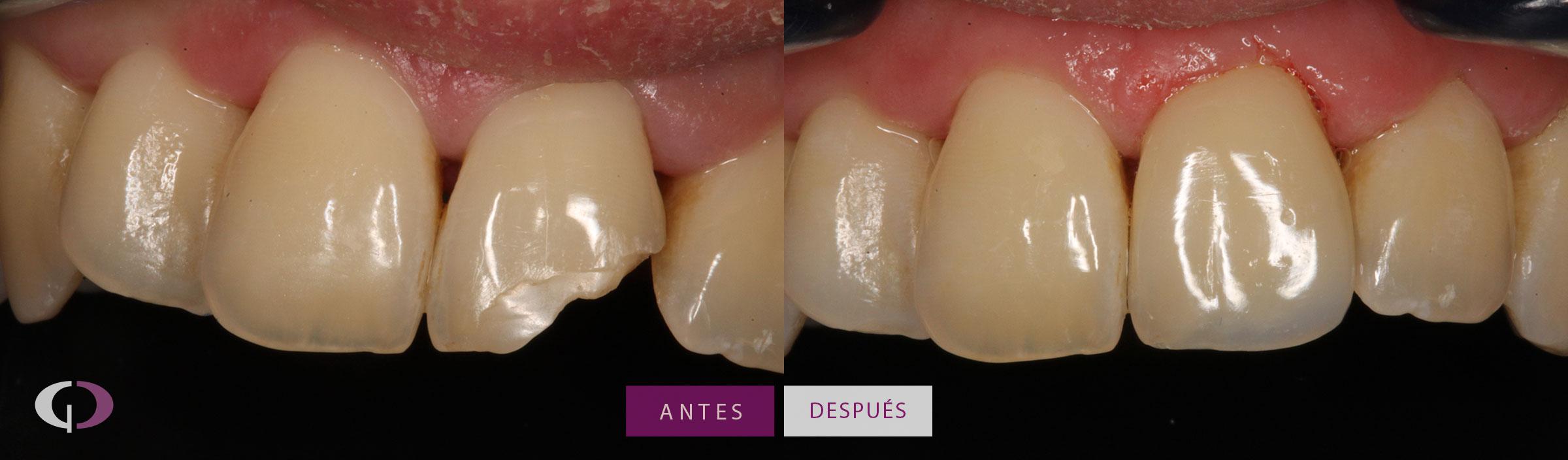 Reconstrucción dental composite