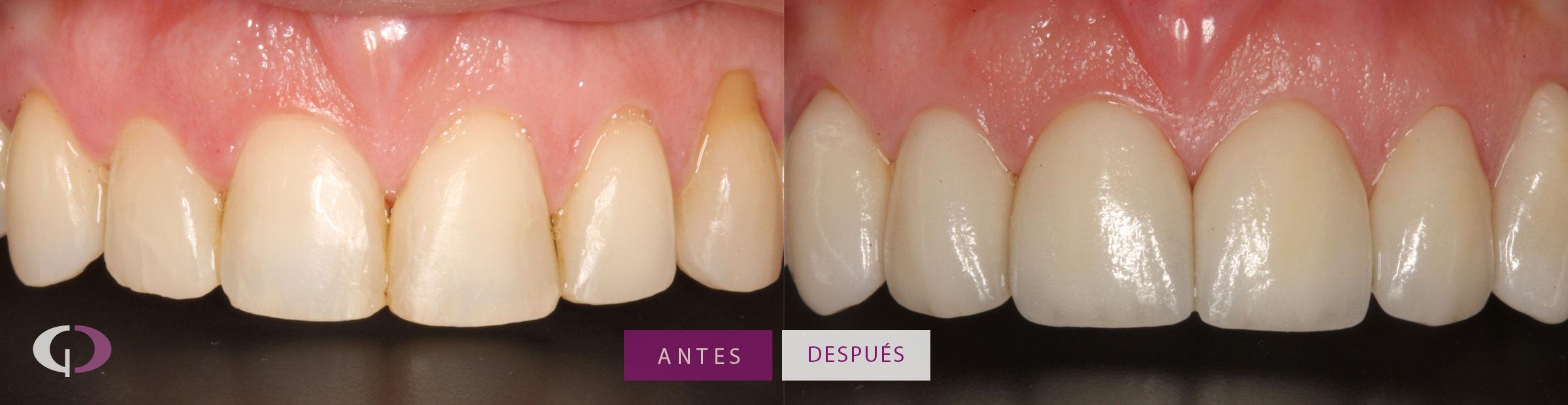 Antes y después coronas de porcelana en Sevilla
