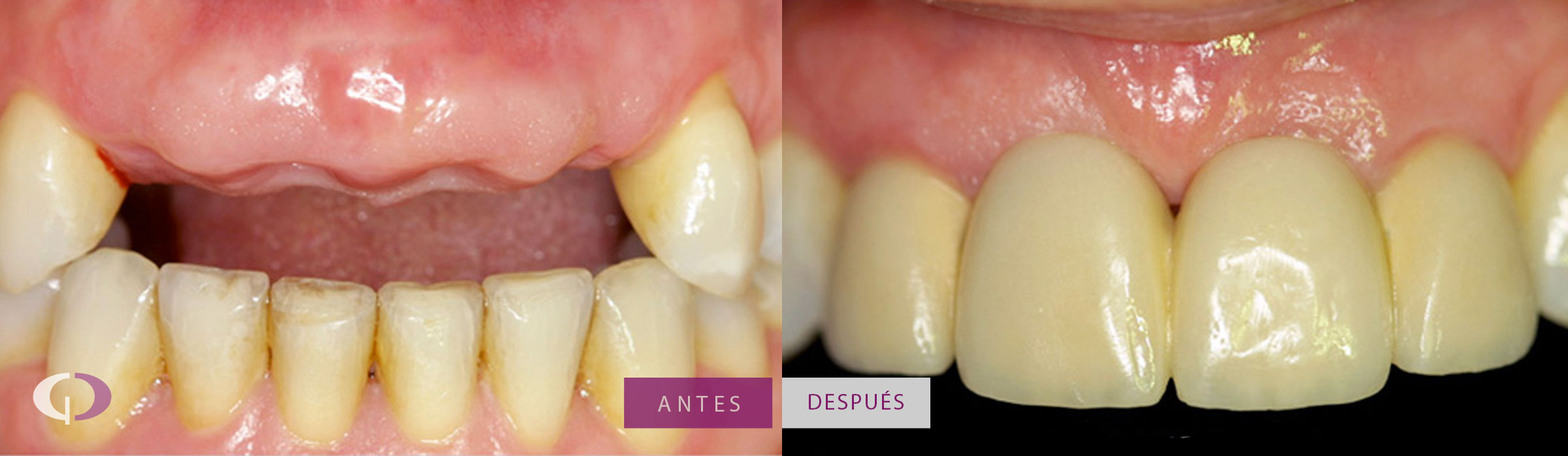 Antes y después Implantes Dentales