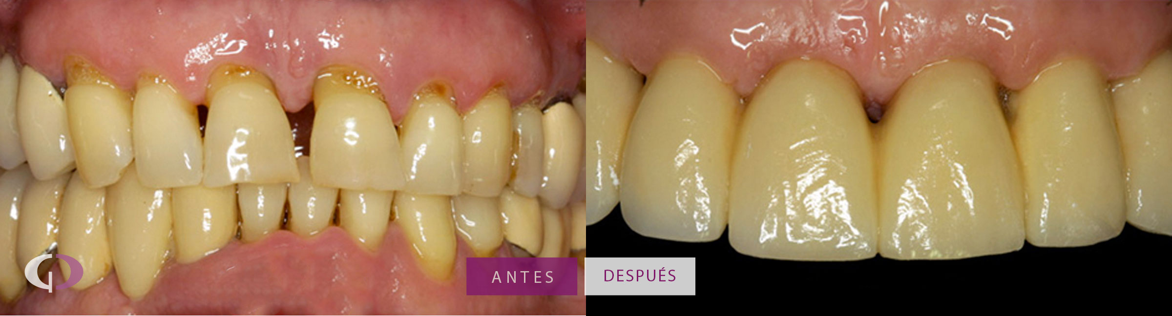Caso real implantes dentales