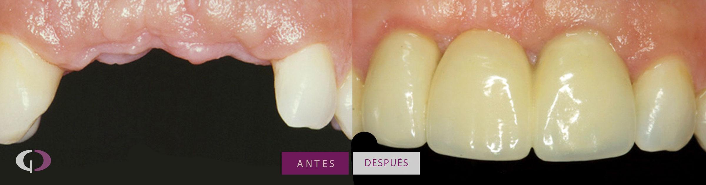 Caso Clínico Implantes Dentales
