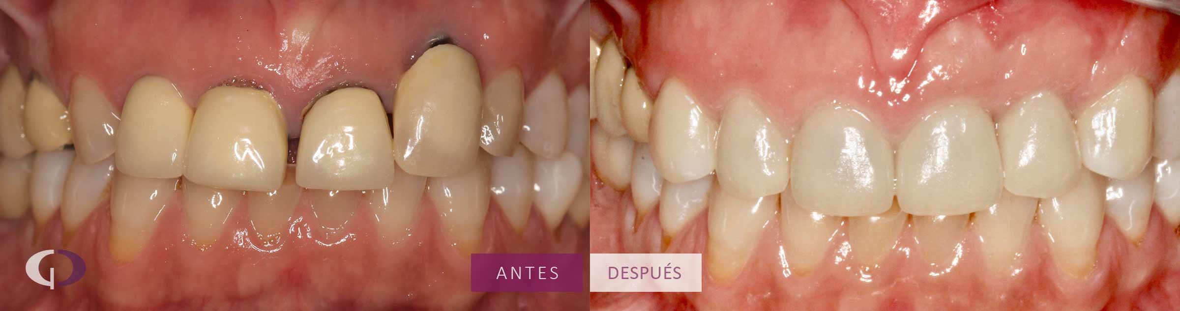 Caso Clínico Implantes y coronas dentales