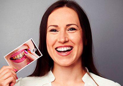 blanquear-dientes-sevilla
