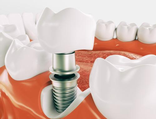 implantes-inmediatos-sevilla