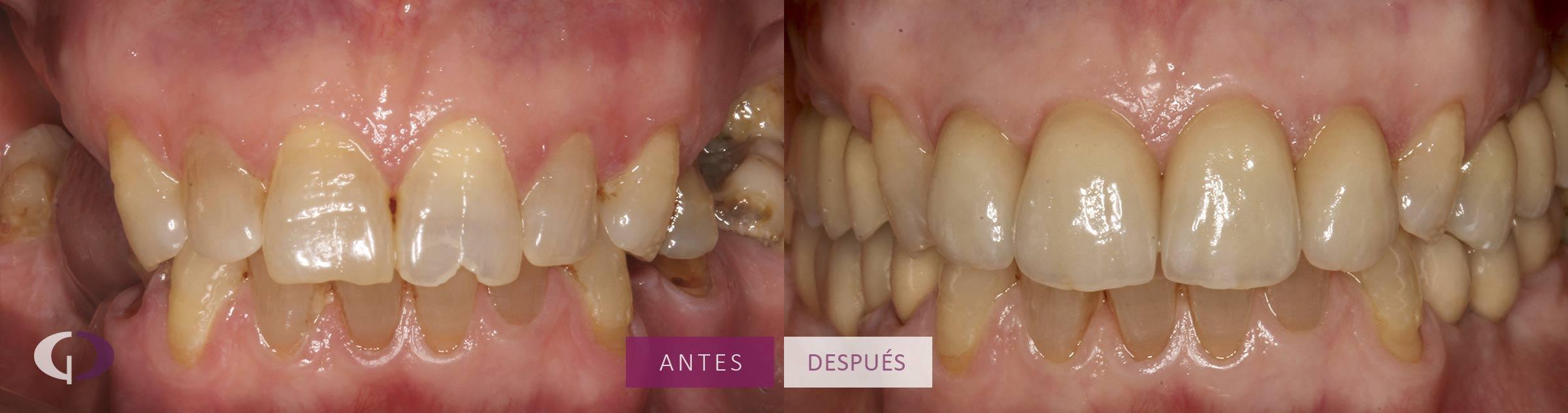 rehabilitacion-oral-completa-sevilla