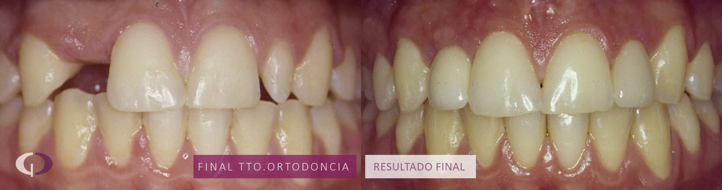 tratamiento-estetico-dental-infantil-sevilla