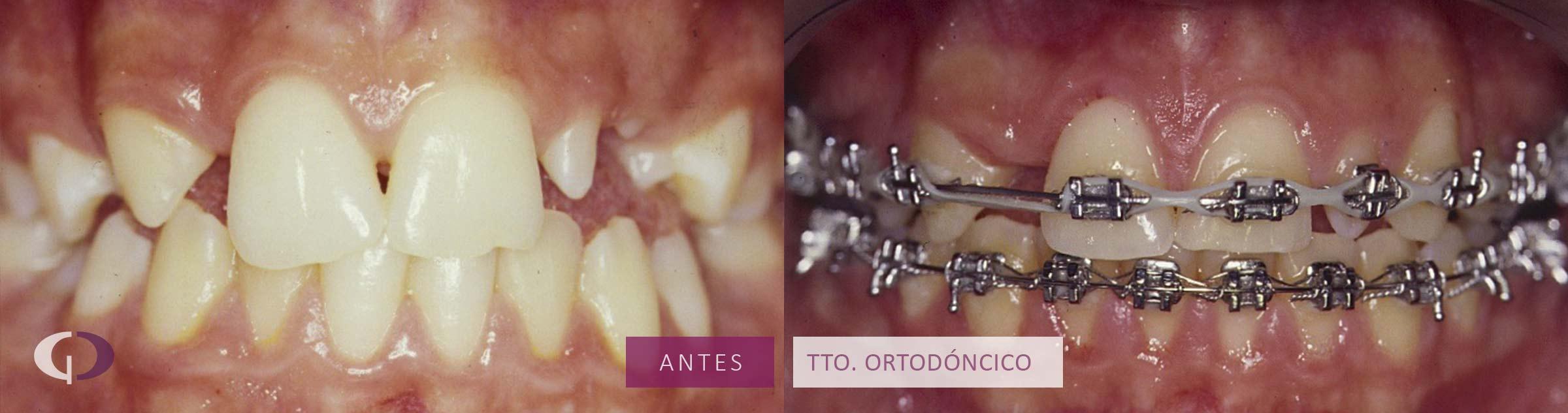tratamiento-estetico-dental-infantil