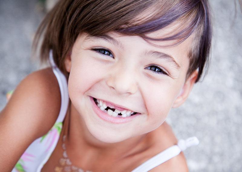 diente-roto-sevilla