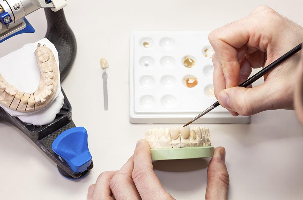 Estética dental prótesis en Sevilla