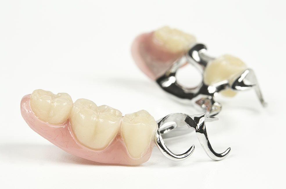 Prótesis dentales fijas en Sevilla