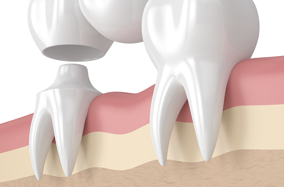Prótesis dentales removibles en Sevilla