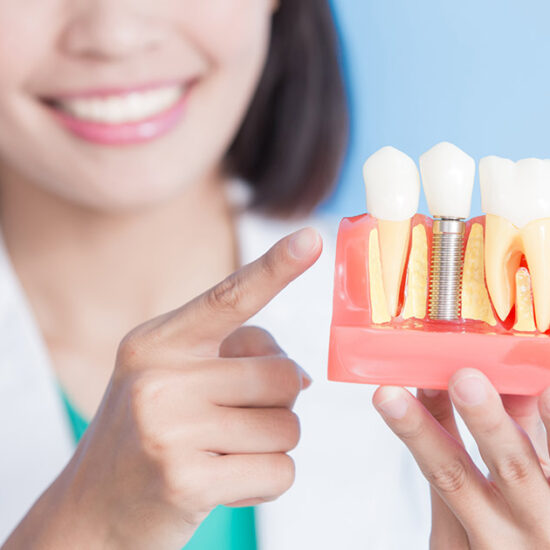 problemas-implantes-dentales