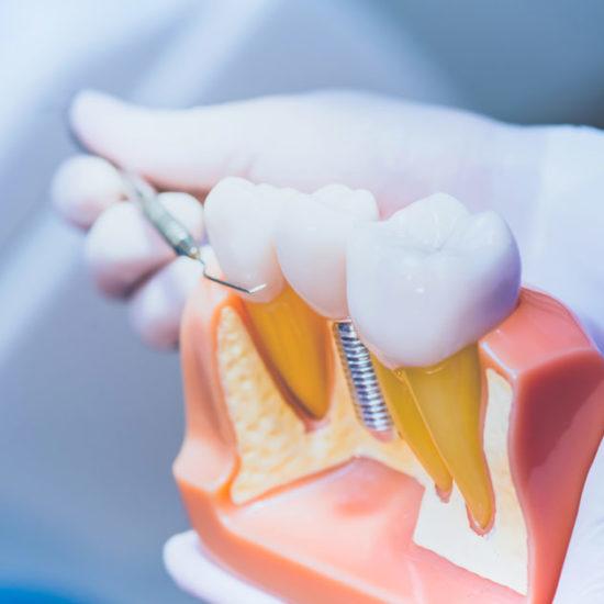 Pérdida de dientes, implantes dentales