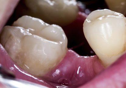 ¿Es perjudicial la falta de dientes?